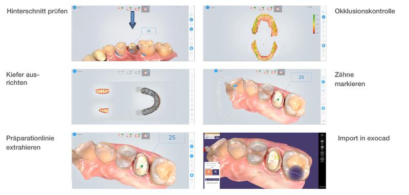 Aoralscan-klinisches-toolkit